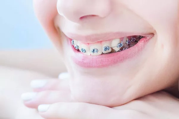 韩女士  牙齿不齐矫