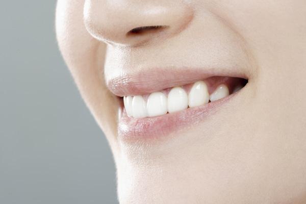 王小姐  牙齿缺失种
